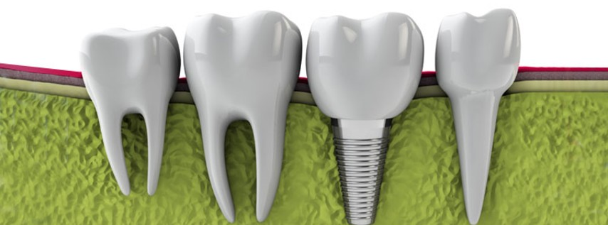 implants dentals a Barcelona